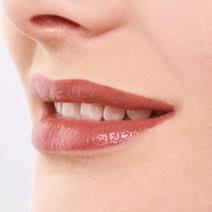口元の調整(ガミースマイル)の施術