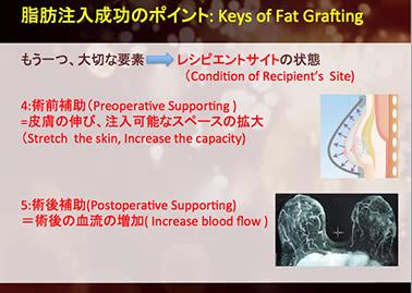 BRAVAとコンデンスリッチ豊胸の併用効果について、ドクター大橋が日本美容外科学会で発表