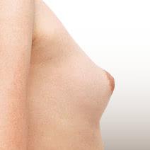 乳頭の調整