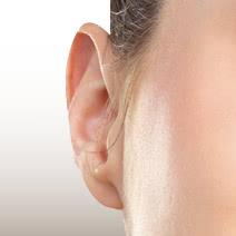 立ち耳の修正