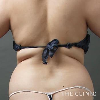 ベイザー脂肪吸引(ベイザーリポ)の背中のモニター(30代)術前症例画像