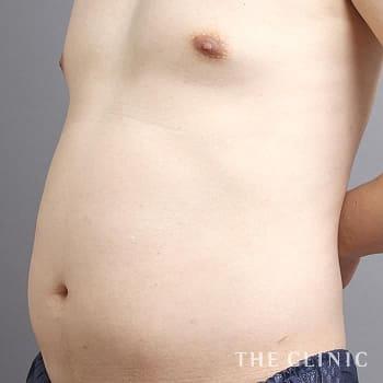 ベイザー4D(シックスパック脂肪吸引)のSIX PACK 6つに割れた腹筋のモニター(40代)術前症例画像