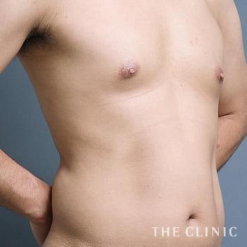 ベイザー4D(シックスパック脂肪吸引)のSIX PACK 6つに割れた腹筋のモニター(30代)術前症例画像