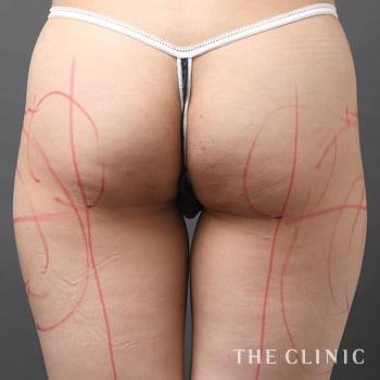 ベイザー脂肪吸引(ベイザーリポ)のお尻のモニター(40代)術前症例画像