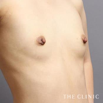 コンデンスリッチ豊胸(濃縮脂肪注入)の授乳後のたるみのモニター(20代)術前症例画像