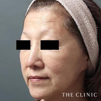 コンデンスリッチフェイス(顔の脂肪注入)の額のシワのモニター(50代)術前症例画像