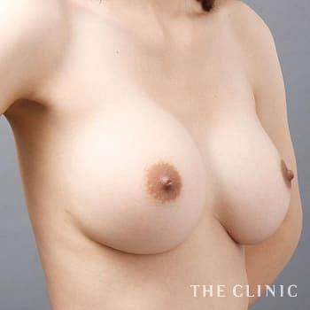 コンデンスリッチ豊胸(濃縮脂肪注入)のシリコンバッグ抜去/不自然な形のモニター(20代)術前症例画像