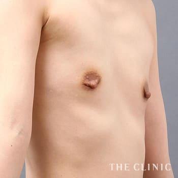 コンデンスリッチ豊胸(濃縮脂肪注入)の授乳後のたるみのモニター(30代)術前症例画像