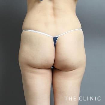 ベイザー脂肪吸引(ベイザーリポ)の太もも/腰・ウエストのモニター(40代)術前症例画像