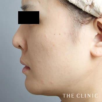 3Dセルリフト(切らないフェイスリフト)のこけた頬のモニター(30代)術前症例画像
