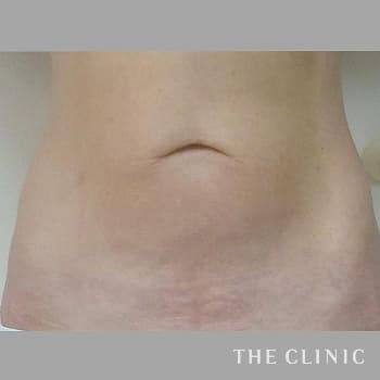 サーミタイト(お尻や胸の引き締め)の腹部のモニター(60代)術前症例画像