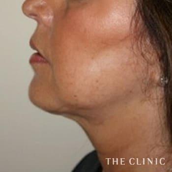 サーミタイト(お尻や胸の引き締め)の頰/顎のモニター(50代)術前症例画像