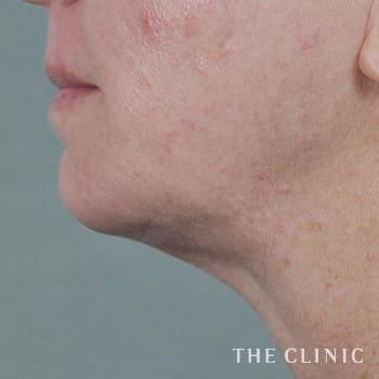 サーミタイト(お尻や胸の引き締め)の頰/顎のモニター(60代)術前症例画像
