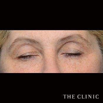 サーミ スムースの目尻のシワのモニター(60代)術前症例画像
