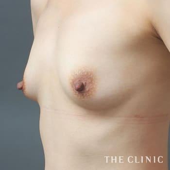 コンデンスリッチ豊胸(濃縮脂肪注入)のボリュームアップのモニター(30代)術前症例画像
