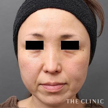 マイクロCRF注入(顔の脂肪注入)の目の下のクマ/法令線のモニター(40代)術前症例画像