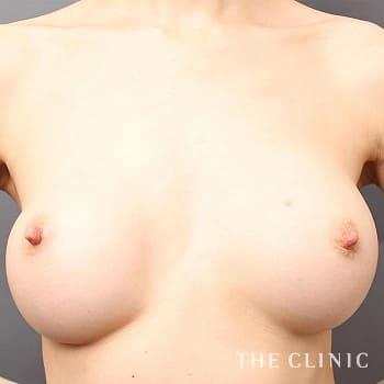 他院豊胸バッグ抜去&コンデンスリッチ豊胸のシリコンバッグ抜去のモニター(30代)術前症例画像