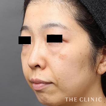 3Dセルリフト(切らないフェイスリフト)のこけた頬のモニター(40代)術前症例画像