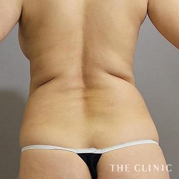 ベイザー脂肪吸引(ベイザーリポ)の背中のモニター(40代)術前症例画像