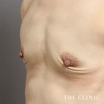 コンデンスリッチ豊胸(濃縮脂肪注入)の授乳後のたるみのモニター(40代)術前症例画像