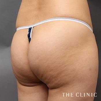サーミタイト(お尻や胸の引き締め)のお尻のモニター(30代)術前症例画像
