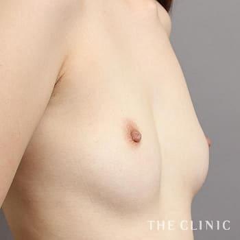 コンデンスリッチ豊胸(濃縮脂肪注入)の左右のバランスのモニター(30代)術前症例画像