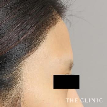 コンデンスリッチフェイス(顔の脂肪注入)の額のシワのモニター(20代)術前症例画像