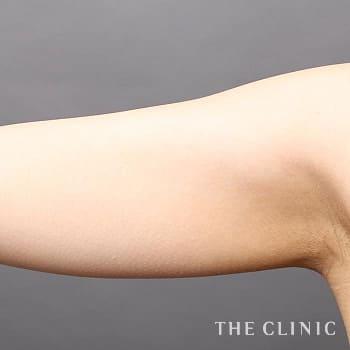 ベイザー脂肪吸引(ベイザーリポ)の二の腕のモニター(30代)術前症例画像