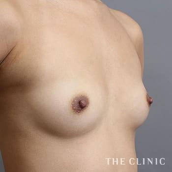 コンデンスリッチ豊胸(濃縮脂肪注入)のボリュームアップのモニター(20代)術前症例画像