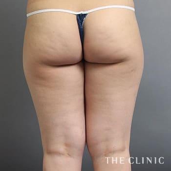 ベイザー脂肪吸引(ベイザーリポ)の太もものモニター(20代)術前症例画像