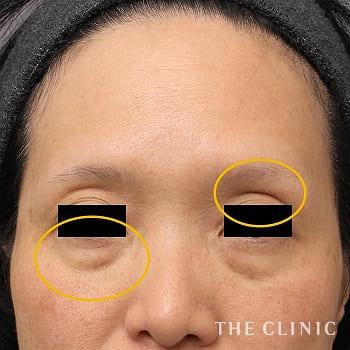 マイクロCRF注入(顔の脂肪注入)の目の上のくぼみ/目の下のクマのモニター(50代)術前症例画像