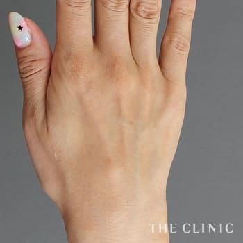 手の若返り(ハンドリバイブ)の手のシワのモニター(40代)術前症例画像