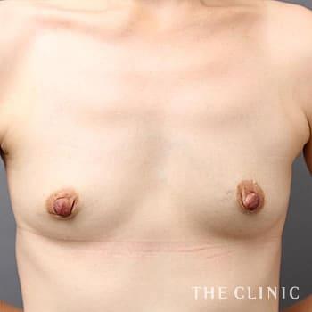 コンデンスリッチ豊胸(濃縮脂肪注入)のボリュームアップのモニター(40代)術前症例画像