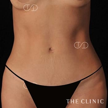 4Dリポ(アブクラックス脂肪吸引)の腰・ウエスト/TWOPACK 陰影ある腹部のモニター(代)術前症例画像