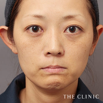 SRF注入(ステムセルリッチファット注入)の目の下のクマ/こめかみ/こけた頬のモニター(40代)術前症例画像