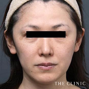 W-PRP プレミアム(血小板療法)の目の下のクマのモニター(30代)術前症例画像