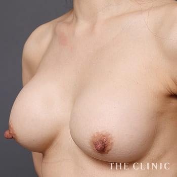 コンデンスリッチ豊胸(濃縮脂肪注入)のシリコンバッグ抜去のモニター(50代)術前症例画像