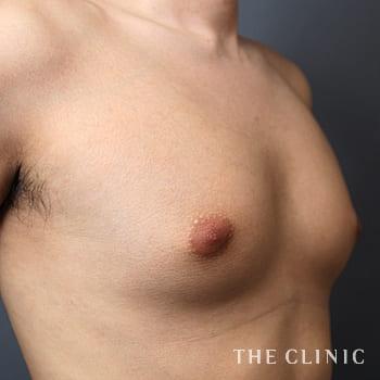 ベイザー脂肪吸引(ベイザーリポ)の女性化乳房のモニター(20代)術前症例画像