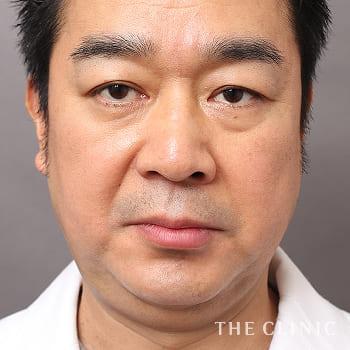 ベイザー脂肪吸引(ベイザーリポ)の頰/顎のモニター(40代)術前症例画像