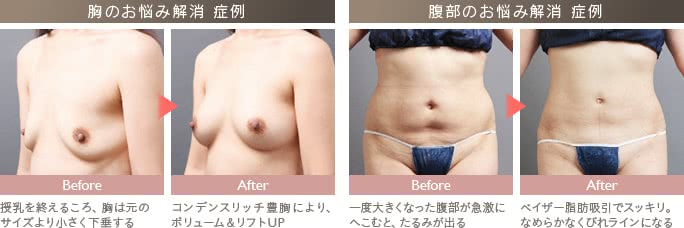 授乳後に行った豊胸、産後に行った脂肪吸引の症例