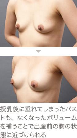 授乳後のコンデンスリッチ豊胸の症例