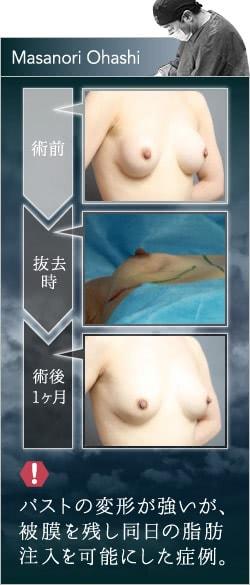 シリコンバッグによって変形したバストを、脂肪注入豊胸で改善した例