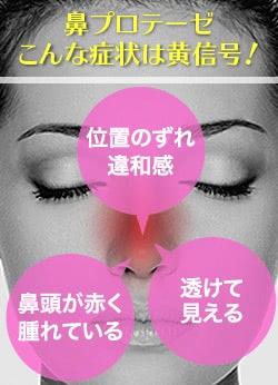鼻プロテーゼの危険症状