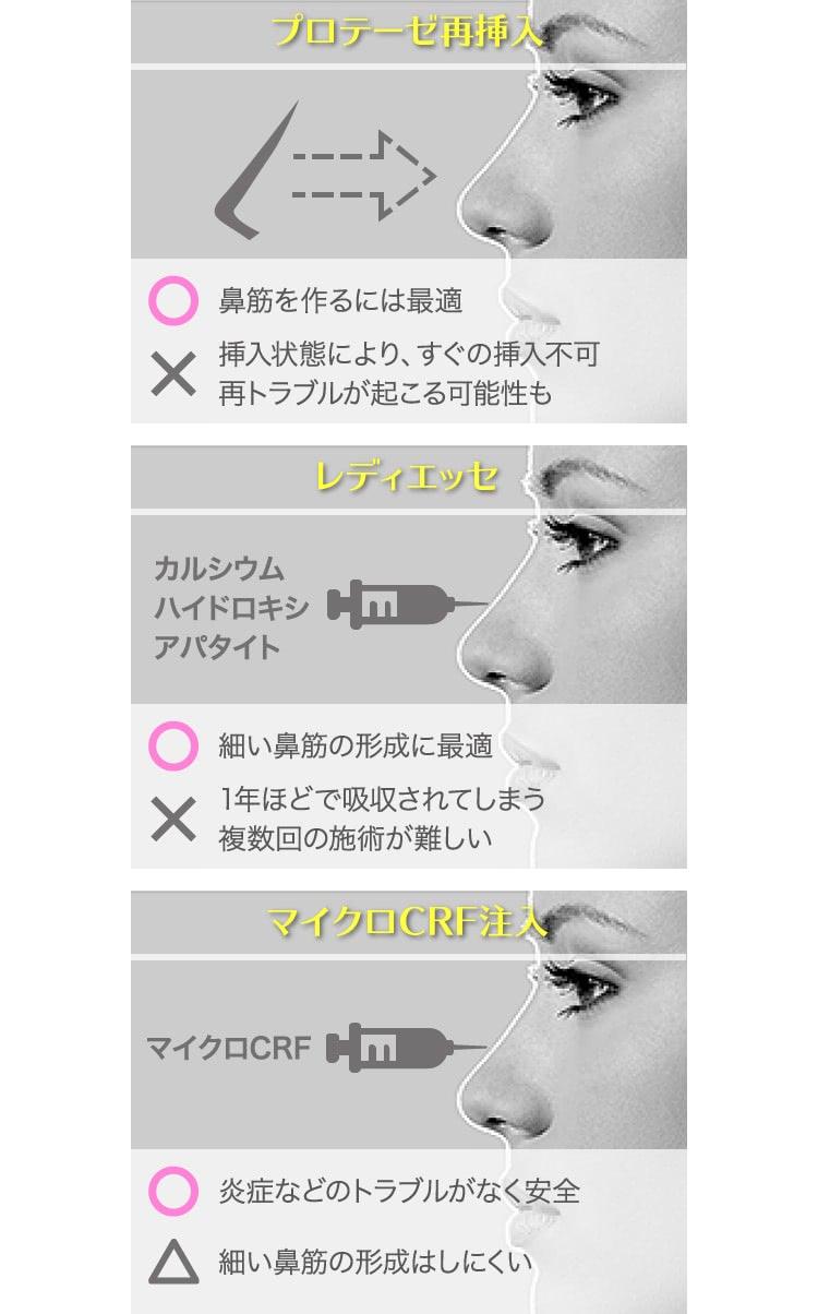 鼻プロテーゼ除去後に考えられる整形法
