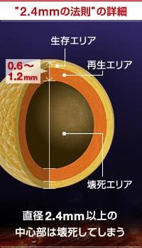 脂肪注入豊胸の2.4mmの法則