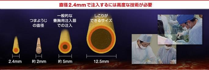 直径2.4mmで脂肪を注入するには高度な技術が必要