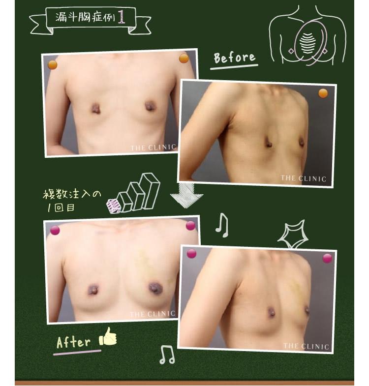 漏斗胸を脂肪注入で改善した症例