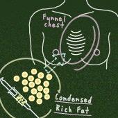 漏斗胸の女性に教えたい! 手術なしで胸の窪みを解消する方法