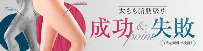 脂肪吸引太ももの成功&失敗ポイント【ブログ写真で検証】