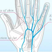 手の浮き出る血管にこんな治療法が! ハンドベインもシワも劇的改善